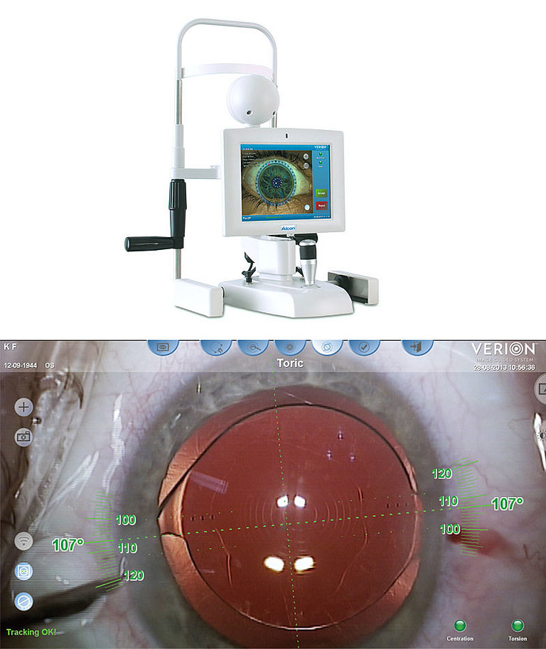VERION™ Image Guided System (Alcon)